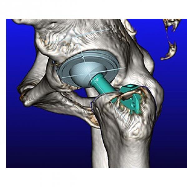 Программное обеспечение mediCAD Hip 3D - планирования и проведения измерений на тазобедренных суставах